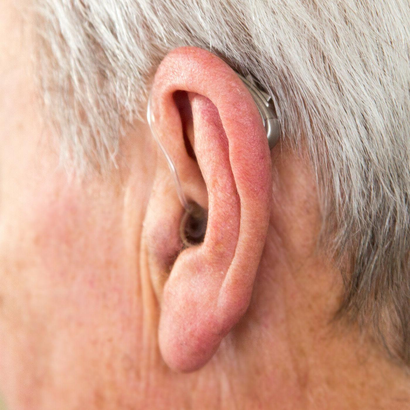 Otofonix Hearing